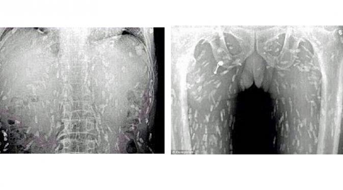 gambar x-ray penikmat sashimi terinfeksi cacing pita
