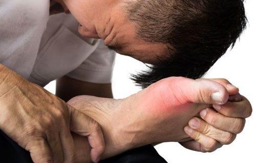 Bahaya Penyakit Asam Urat Apabila Tidak Diobati